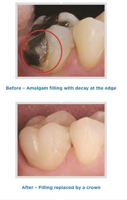 Before and After Dental Crown Placement