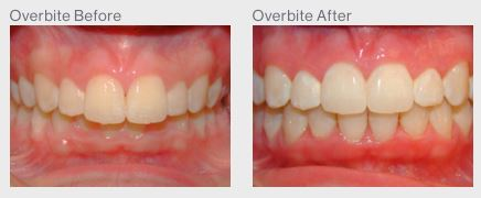 Overbite Correction Houston