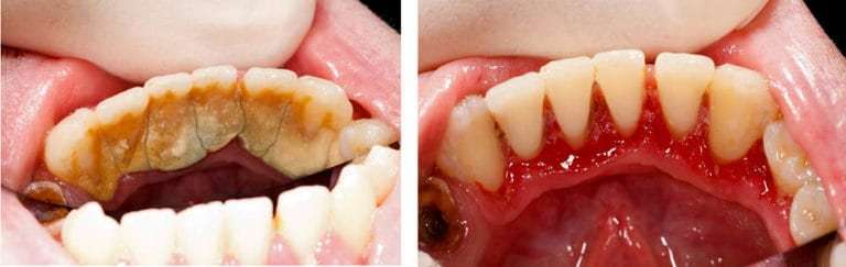 gum disease deep cleaning