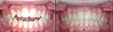 Open Bite Correction with Braces at Best Dental with Dr. Jasmine Naderi - Richmond, TX orthodontist
