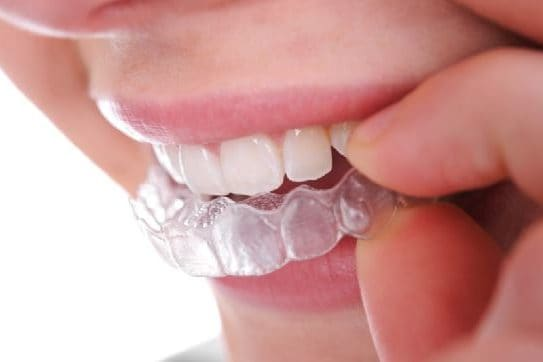 Retainers at Best Dental with Dr. Jasmine Naderi