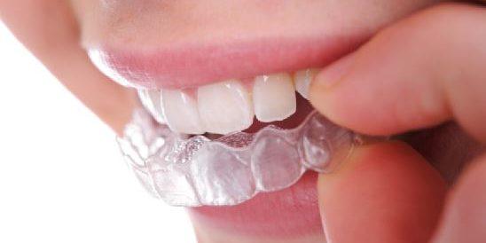 Orthodontist Richmond Tx