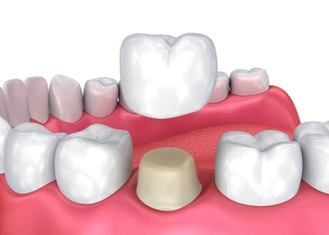 Dental Crown Richmond, Tx   Best Dental