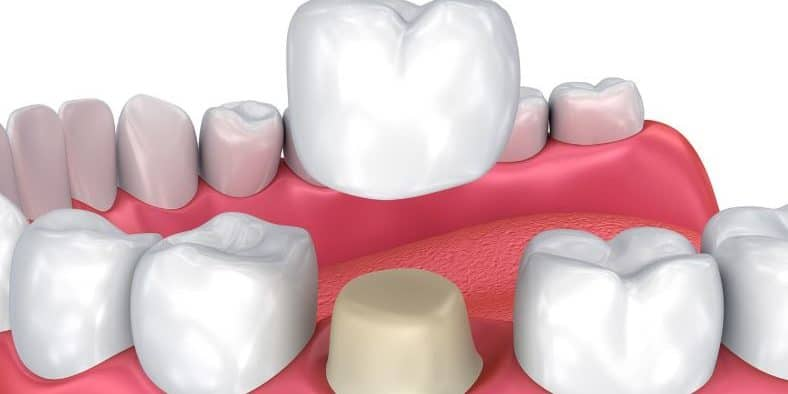 Steps to take if your dental crown falls off