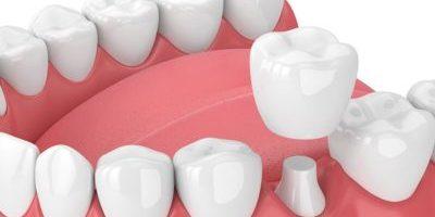 Dental Crown Richmond, Texas | Best Dental
