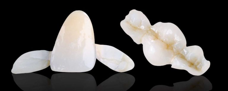 Maryland Bridge labwork at Best Dental with Dr. Jasmine Naderi