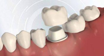 Dental crowns Richmond TX