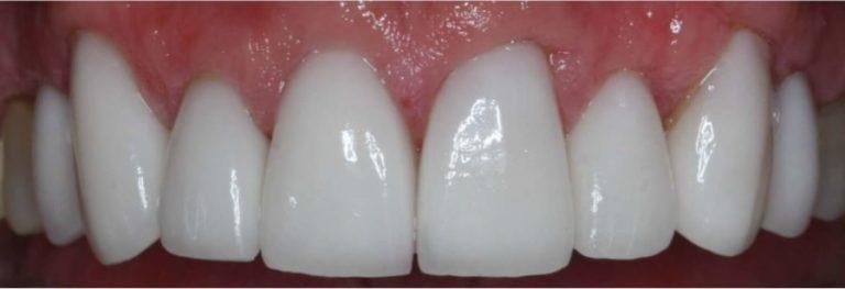 Permanent crowns with Dr. Jasmine Naderi at Best Dental