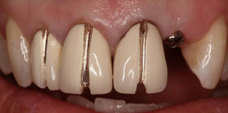 Process of removal of old Dental Crowns with Dr. Jasmine Naderi at Best Dental