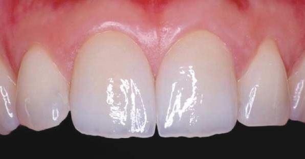 Porcelain Dental Crown with Dr. Jasmine Naderi at Best Dental