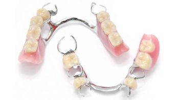 Partial Dentures with Dr. Jasmine Naderi at Best Dental
