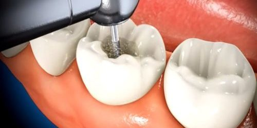 Painless Root Canal in Houston - Best Dental