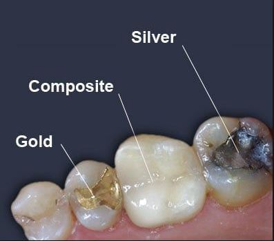 Types of Dental Fillings with Dr. Jasmine Naderi at Best Dental