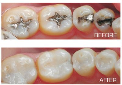 Silver Filling Replacement with Dr. Jasmine Naderi at Best Dental