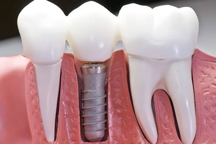 Dental Implant made of Titanium