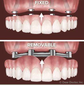 Overdenture or Hybrid Denture?