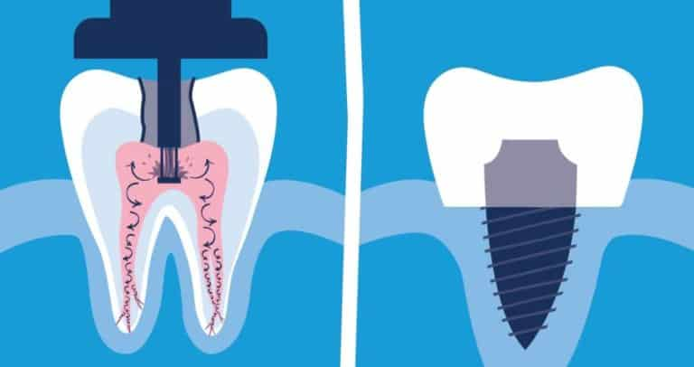 Root Canal In Richmond