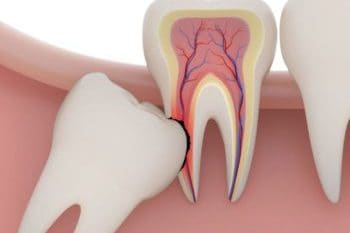 Wisdom teeth numbness | Best Dental in Houston, TX