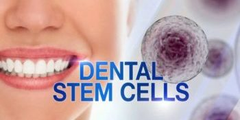 Dental Stem Cell Therapy With Dr Jasmine Naderi Dds