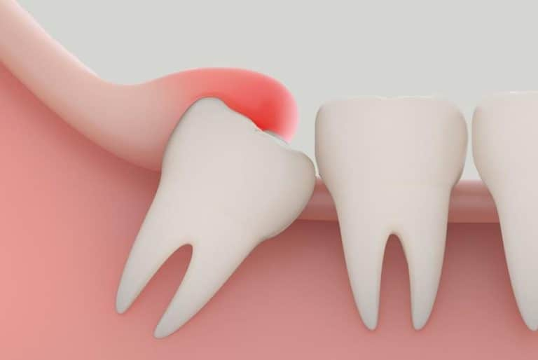 Pericoronitis and Wisdom Teeth with Dr. Jasmine Naderi at Best Dental.