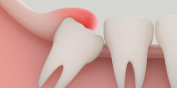 Pericoronitis Pain | Home Remedies and Cures | Best Dental in Houston, TX