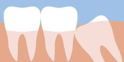 Wisdom Teeth with Dr. Jasmine Naderi at Best Dental