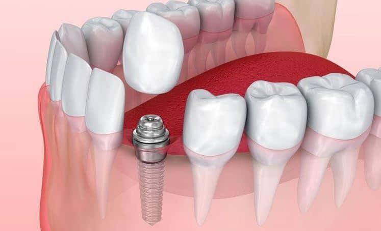Affordable Dental Implants Houston