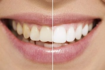 Does teeth whitening work? | Best Dental