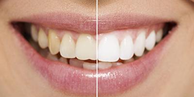 Teeth Whitening Facts