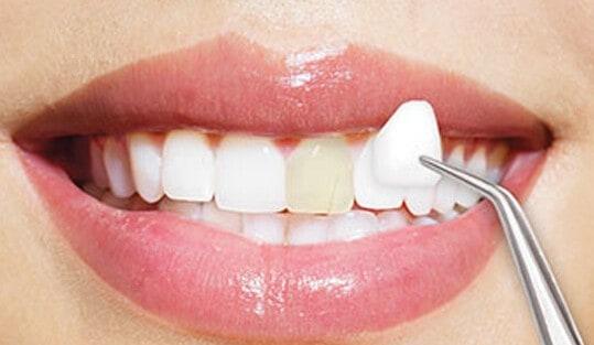 Porcelain Veneers in Richmond, TX | Best Dental