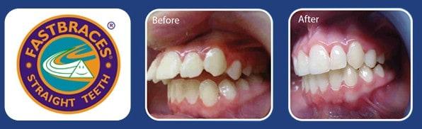 six month braces houston and richmond tx