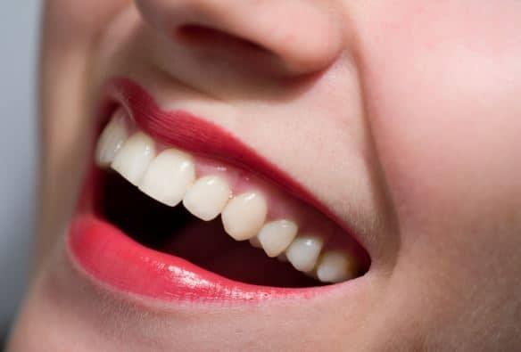 Dental Lumineers Richmond Tx