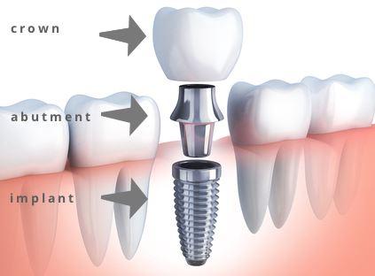 restorative dentist houston