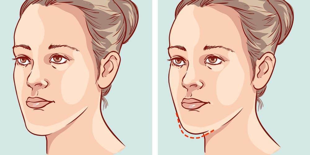Underbite Jaw Correction Braces Before Surgery