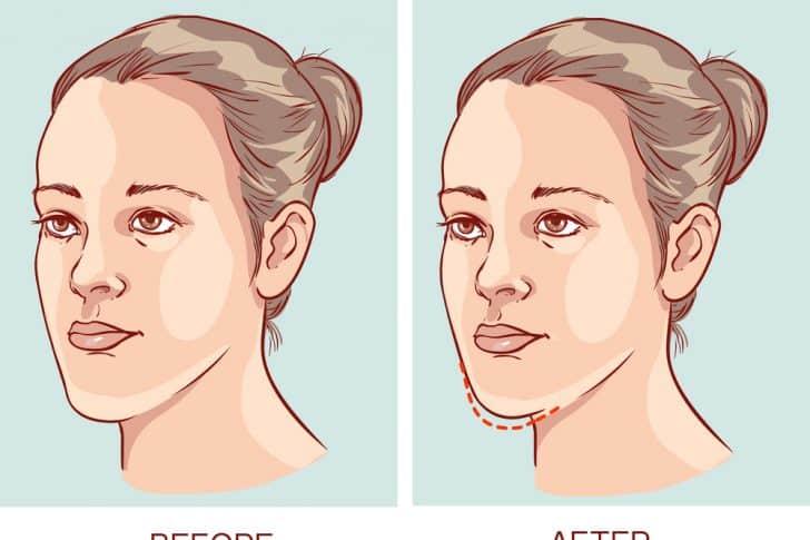 underbite jaw surgery