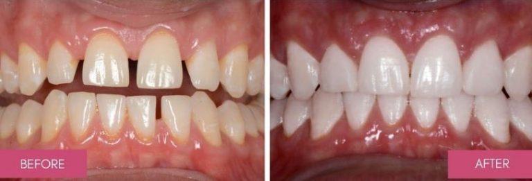 Houston Cosmetic Dentist | Best Dental Tx | Affordable