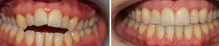 Cosmetic Dentistry correcting underbite and overbite