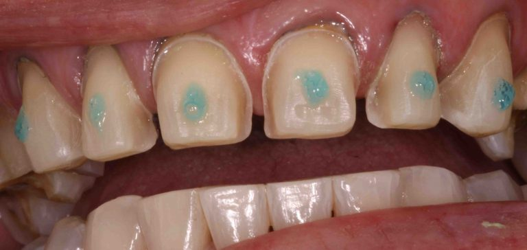 Dental Veneers Cementation