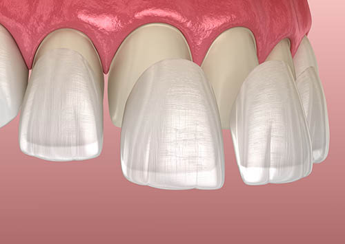 Dental Veneers Houston