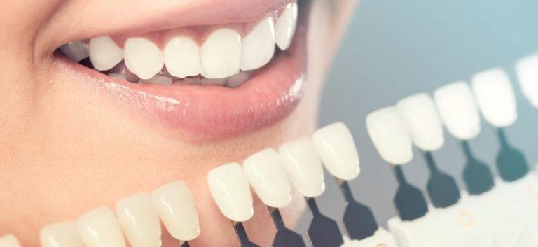 Houston Cosmetic Dentist Dr. Jasmine Naderi