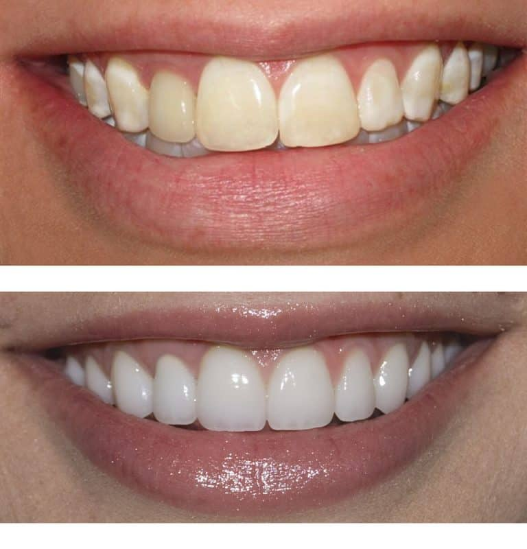 teeth whitening spring tx