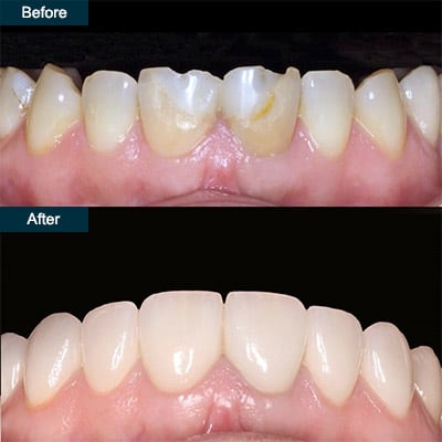 Houston Cosmetic Dentist