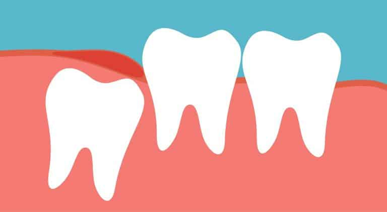 wisdom teeth removal cypress
