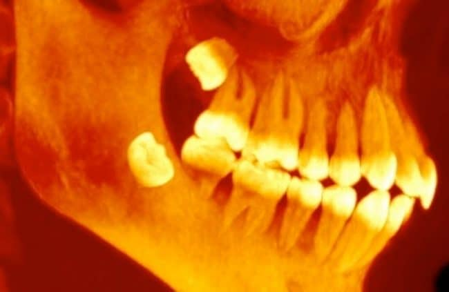 preparing for wisdom teeth removal