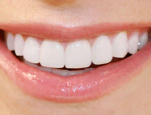 Porcelain Veneers Costs | Best Dental in Houston, TX
