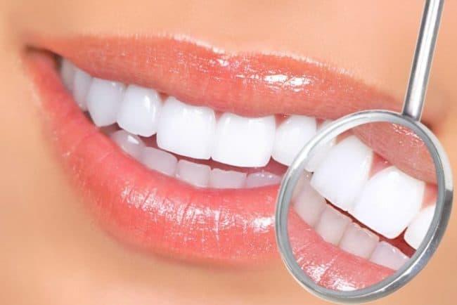dental veneer falls off