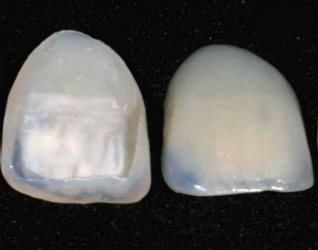 veneers dental insurance