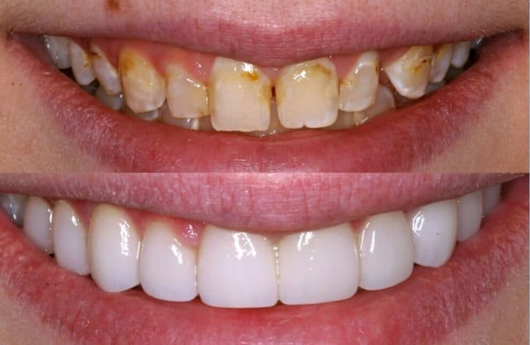 Veneers houston tx