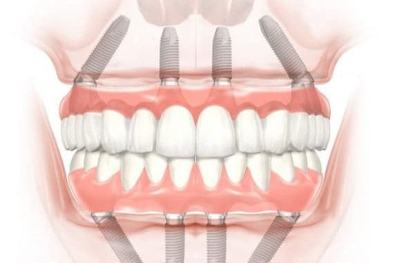 all on 4 dental implants houston tx