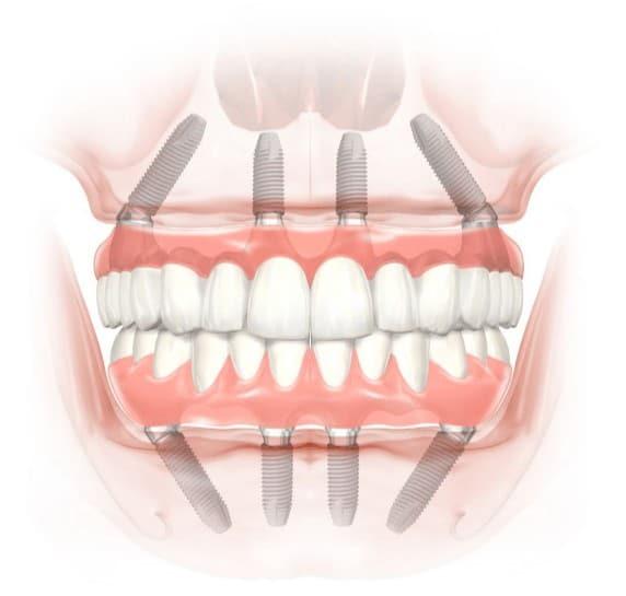 all on 4 dental implants houston tx
